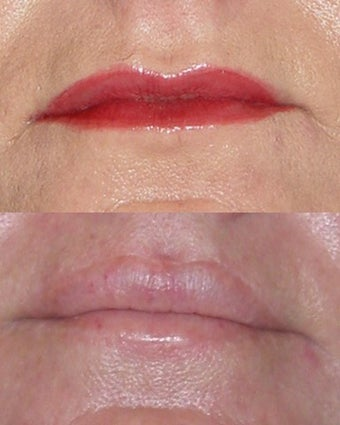 Lip Lift before 366821