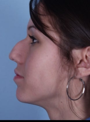 Young Woman in her 20's Underwent a Rhinoplasty before 626789