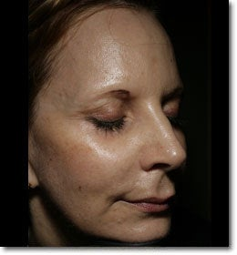 Sculptra  after 650576