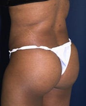 Brazilian Butt Lift (Butt Augmentation) after 242792