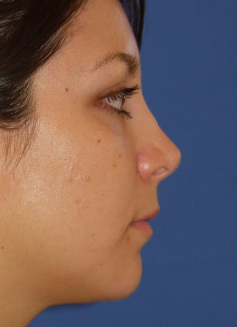 Revision Rhinoplasty 410615