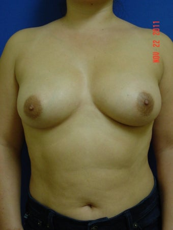 Breast Augmentation before 509086
