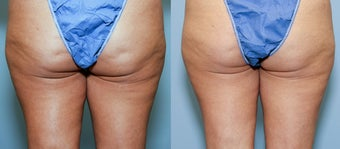 42  year old female with cellulite before 644182