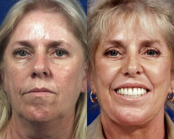 Face Lift, Rhinoplasty, and Laser Resurfacing before 507905