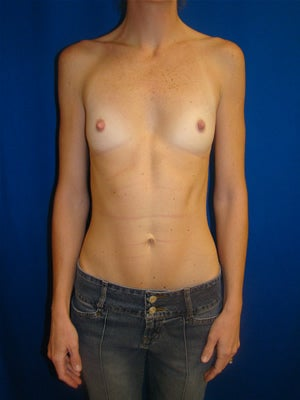 Breast Augmentation Surgery - Silicone-Gel Implants