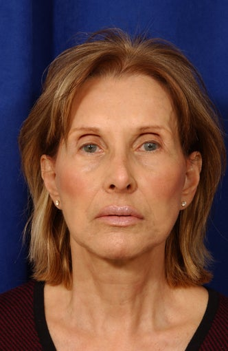 Multiple facial plastic surgery procedures after 57026