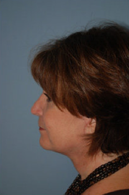 Neck Lift after 265847