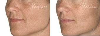 Before and after Restylane on fine lines before 6270