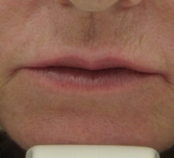 63 year old lip Augmentation with Juvederm after 53008