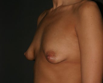 Breast Augmentation and Breast Lift before 313251