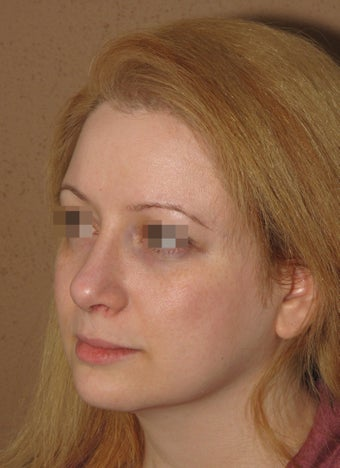 2 weeks after result of rhinoplasty/septoplasty after 270698