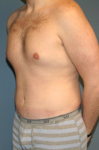 Male tummy tuck 617898