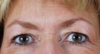 Endoscopic brow lift and blepharoplasty before 240871