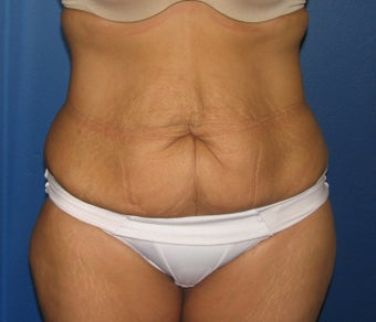 Tummy Tuck before 575339