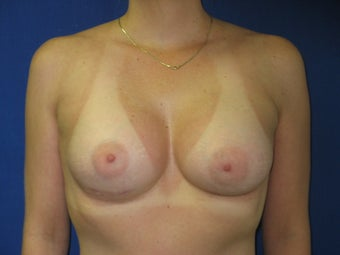 Augmentation Mammaplasty after 240508