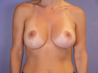 Breast Implant Revision after 306990