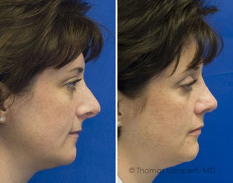 Revision Rhinoplasty after 236699