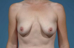 Breast Augmentation before 137678