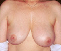 Breast implant removal before 316569