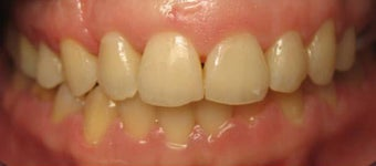 Invisalign  after 436998