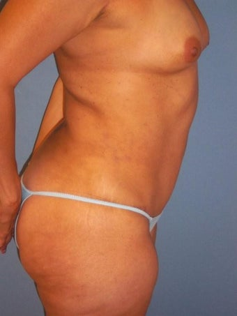 Tummy Tuck after 340068