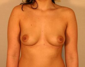 Endoscopic Breast Augmentation before 379556