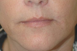 Lip enhancement (smoker's lines) before 91304