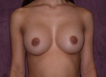 breast augmentation after 472141