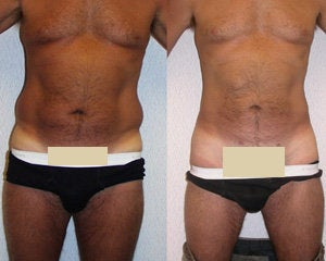 Liposuction before 119361
