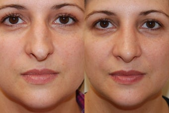 Rhinoplasty, 3 weeks post-op. Front view before 139109