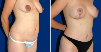 Tummy Tuck after 496376