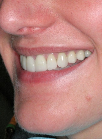 Replacement Porcelain Veneers 368025