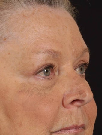 Blepharoplasty after 165948