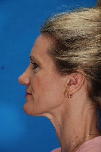 Revision Rhinoplasty after 186038