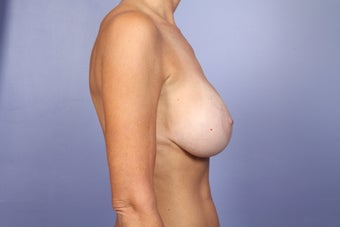 Breast Lift / Breast Augmentation  after 291053