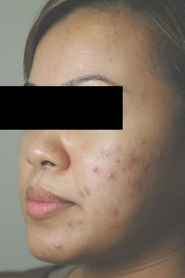 Laser Acne Treatment before 82975