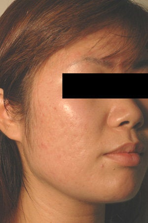 Pulsed Dye Laser Treatment for Red Acne Scars   after 104193