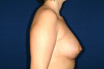 breast enlargment with auto fat transplant after 220957