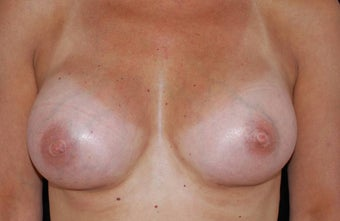 Breast Augmentation after 483529