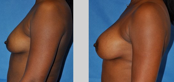 Flash Recovery Breast Augmentation TM before 253899