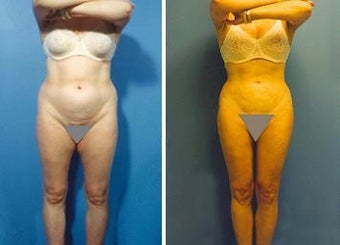 Liposuction before 636215