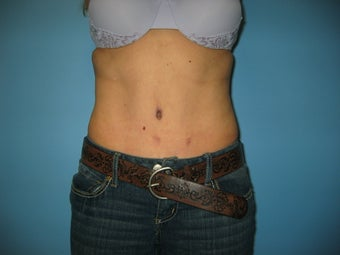 tummy tuck with liposuction after 496508