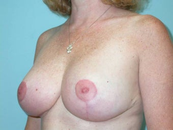 Breast Reduction after 148699