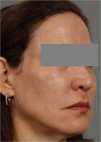 47 year old female treated for melasma, age spots, large pores and rough skin texture 645449
