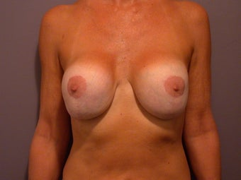 Breast lift and Implants before 306356