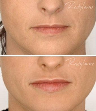 Resylane lip augmentation 1.0 ml before 6288