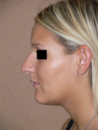 Nose job - rhinoplasty before 595266