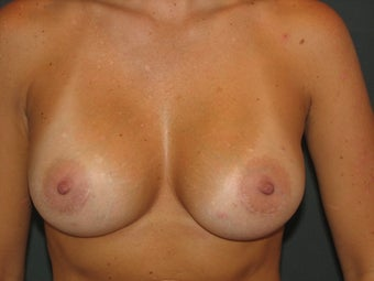 Breast Augmentation  after 384406
