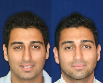 Rhinoplasty and Septoplasty before 223663