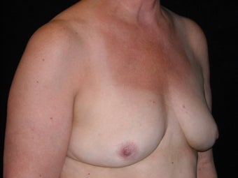 Breast implant removal 566066